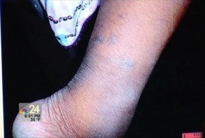 The scarred and swollen ankle of the shackled girl. NBC24 image of courtroom exhibit. Screencap