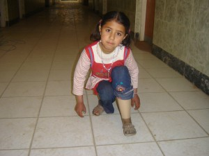 Saffa Kneeling Wearing New Leg