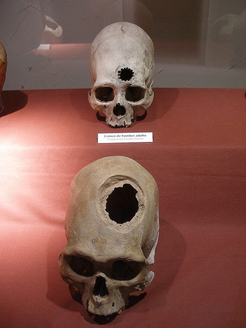 Incan Brain Surgery. Photo Source: Flickr Creative Commons by Thomas Quine https://www.flickr.com/photos/quinet/