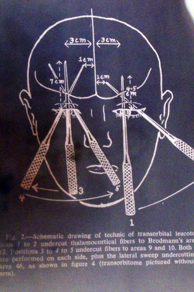 Lobotomy Procedure. From the Mutter Museum. Photo Source: Flickr Creative Commons by Jill Robidoux https://www.flickr.com/photos/jylcat/