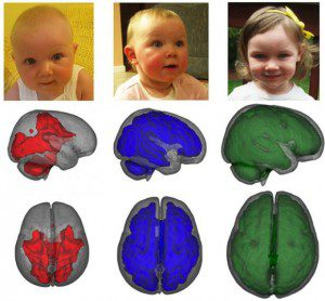 Support for the developing brain MRI images, taken while children were asleep, showed that infants who were exclusively breastfed for at least three months had enhanced development in key parts of the brain compared to children who were fed formula or a combination of formula and breastmilk. Images show development of myelization by age, left to right. Baby Imaging Lab/ Brown University