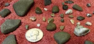 stones from inside a turkey's gizzard