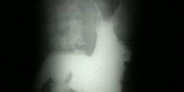 "The terminal x-ray that opens ""Ikiru"""