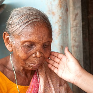 GFA World Leprosy Day Report - What Is Leprosy - KP Yohannan - Gospel for Asia