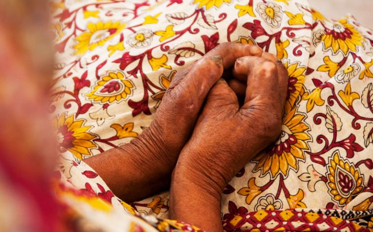 The deformed hands of leprosy patients—and the stigma that surrounds the disease—limit job opportunities.