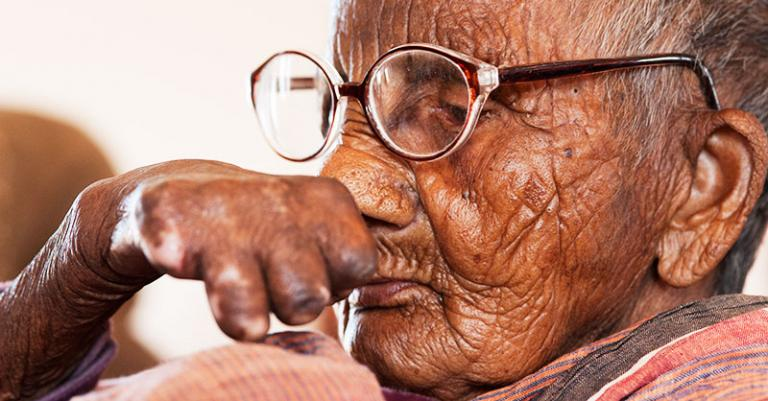 The physical disfigurement caused by leprosy is one of the most well-known signs of the disease.