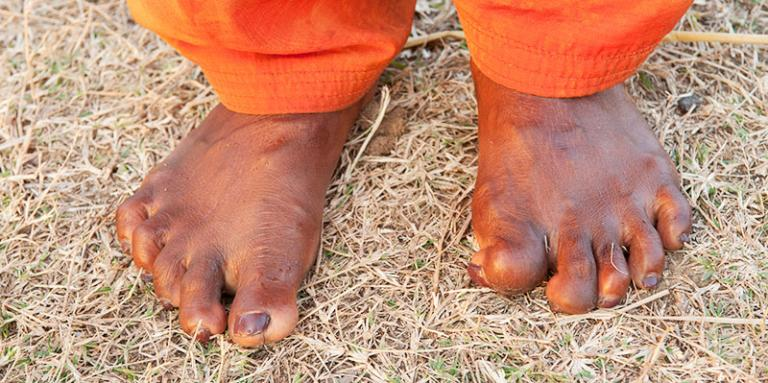 Sakshi's feet still bear the marks of leprosy, though she is now cured.