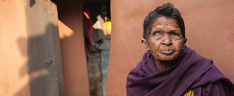 Discussing the discrimination leprosy patients experience, and the grace of God through leprosy ministry missionaries to help and heal the uncared for and shunned.