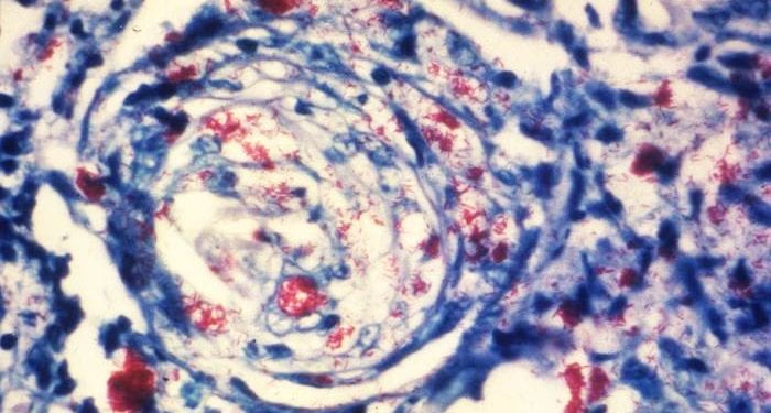 Photomicrograph of a skin tissue sample from a patient with leprosy reveals a cutaneous nerve invaded by numerous Mycobacterium leprae bacteria. Photo by Arthur E. Kaye, CDC
