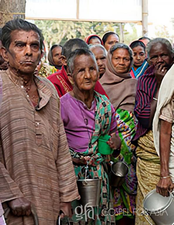 Gospel for Asia (GFA World) founded by Dr. K.P. Yohannan: Discussing the stigma of having leprosy, the suffering, humiliation, and the love of Christ shown through those like a Gospel for Asia missionaries.
