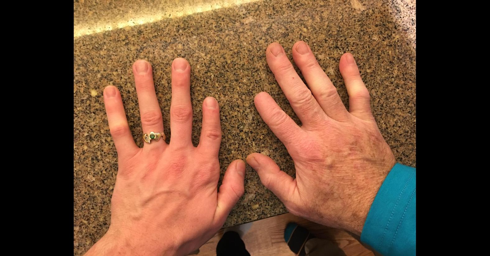 HandsFingerShort