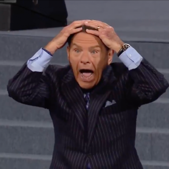 "Scamvangelist Says God Will Bring Your Hair Back: ""Bald Spots, I Call You Gone!"""